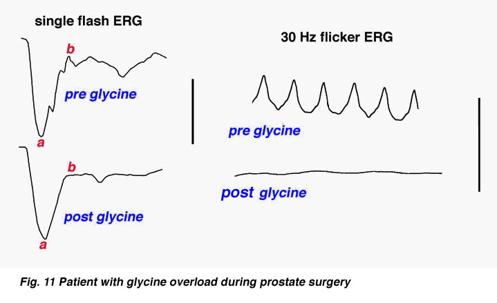 The electroretinogram and electro oculogram clinical applications oscillatory potentials and vision return to the patient over several hours as the glycine is metabolized fig 11 ccuart Choice Image