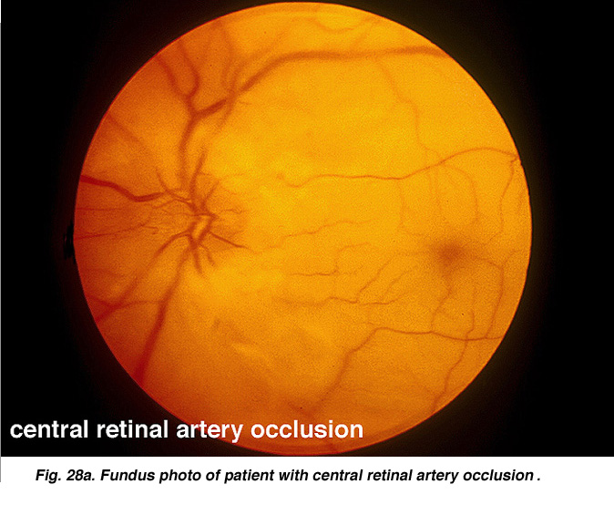 Ophthalmic Images - Retinal Artery Occlusion