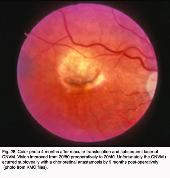 Age Related Macular Degeneration Amd By Gregory S Hageman Karen Gaehrs Lincoln V Johnson And Don Anderson Webvision