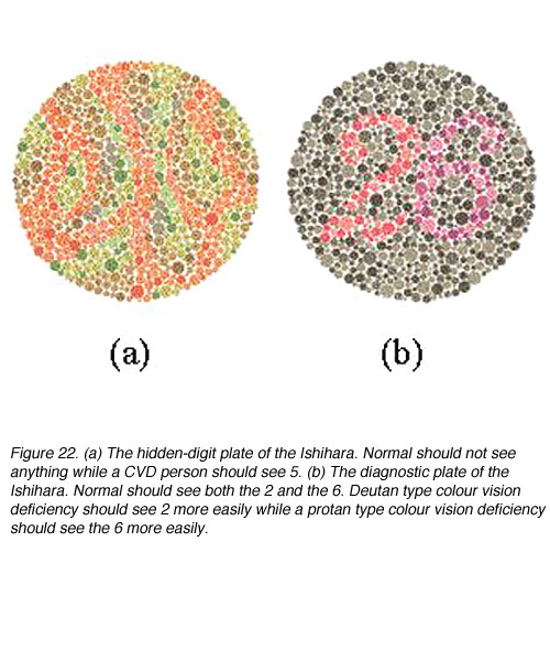 how does colour vision works Does plaquenil (hydroxychloriquine) affect the color vision if you see light streaks or flashes in your vision i hope this does not happen to you or anyone.