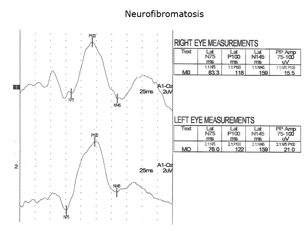 Visually Evoked Potentials By Donnell J Creel Webvision Simple Eye Diagram Sagittal Drawing Of Pattern Reversal Veps Recorded From A 5 Year Old With Nf1 Showing Slowing Vep Components In Both Optic Nerves