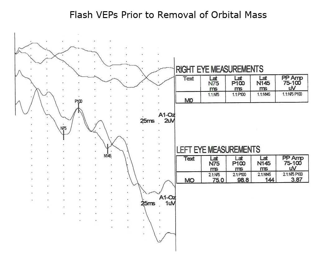 Visually Evoked Potentials by Donnell J  Creel – Webvision