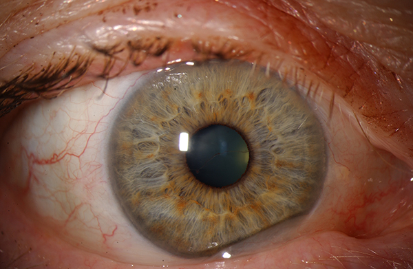 the pupil The pupil of the eye is similar to a camera aperture that can become bigger or smaller depending on how much light is needed to enter the eye the pupil can under miosis, which is a constriction of the size of the pupil to become smaller or it can undergo mydriasis, which is a dilation of the pupil or enlargement of the size of the pupil.