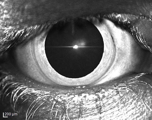 BWJones-Eye