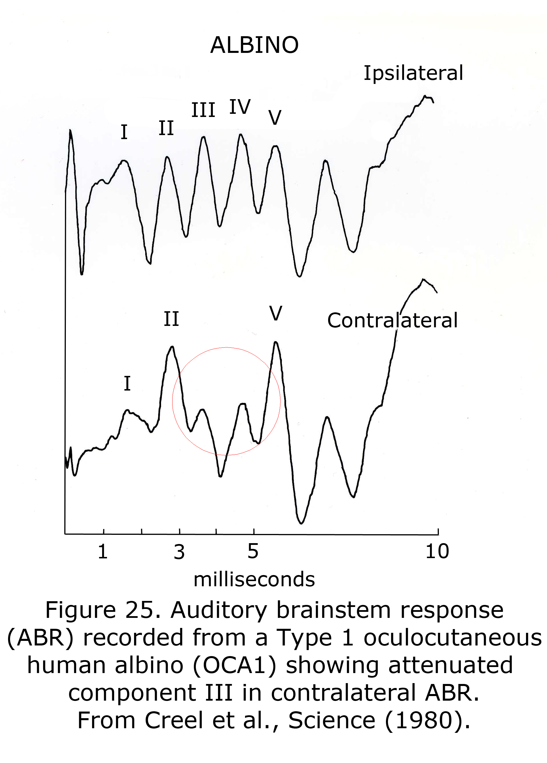 Visual And Auditory Anomalies Associated With Albinism By Donnell J Of The Current Source Figure 18 Shows A Simple Example 25abralbino
