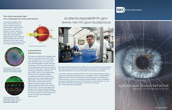 Metabolomic Eye In NIH Audacious Goals 600