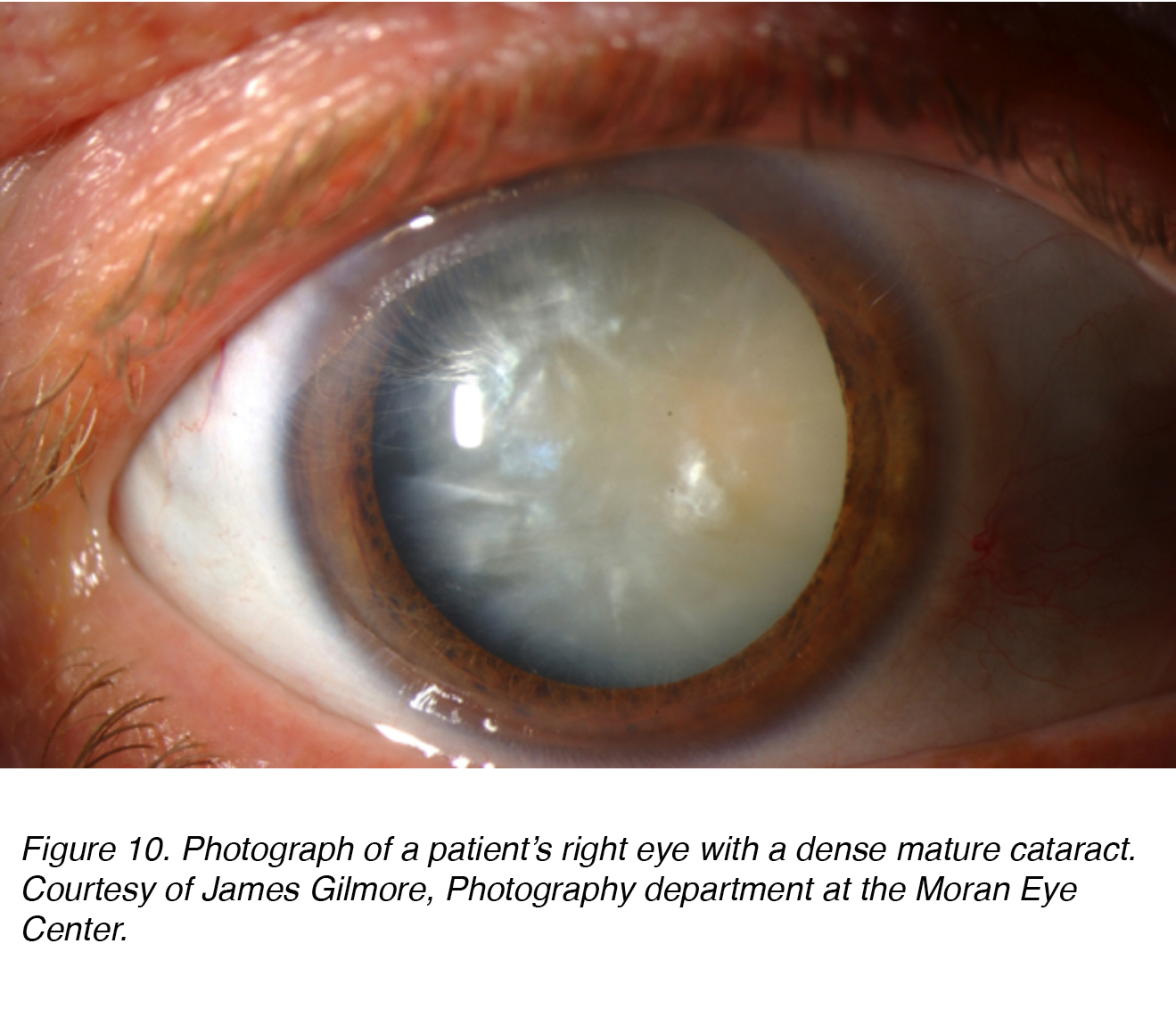 senile mature cataract