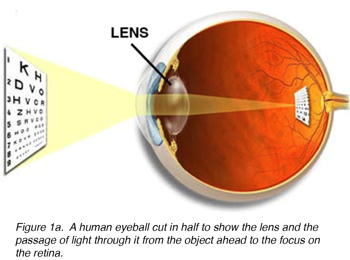 Crystalline Lens And Cataract By Joah F Aliancy And Nick Mamalis