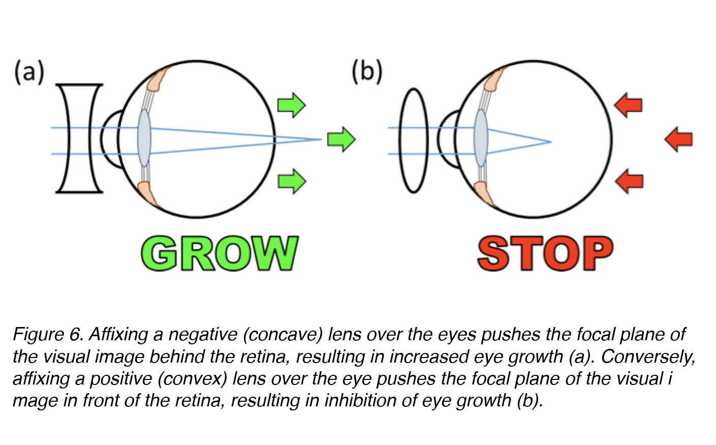 The Science Behind Myopia by Brittany J  Carr and William K  Stell