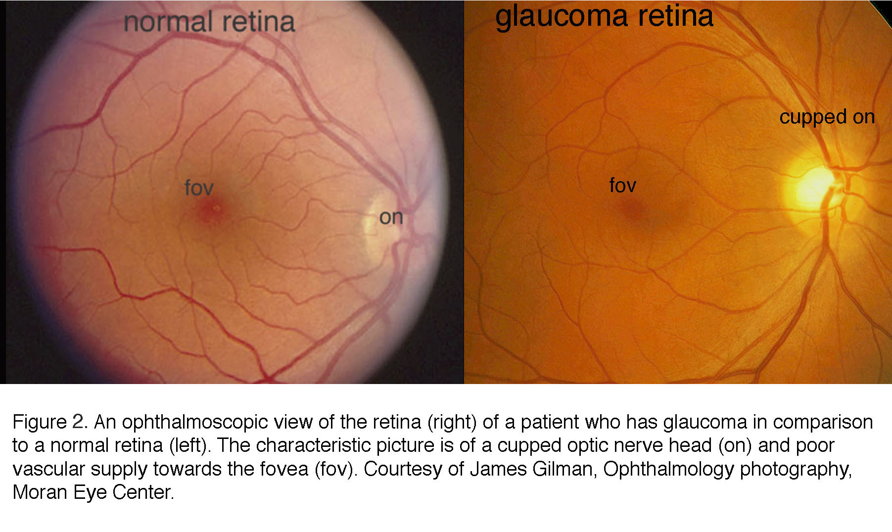 What is glaucoma? by David Krizaj – Webvision