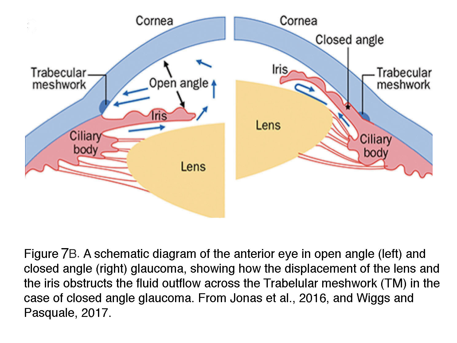 What is glaucoma? by David Krizaj – Webvision Schematic Diagram Of The Eye on cross section of the eye, flowchart of the eye, schematic eye retinoscopy, sagittal section of the eye, schematic section of the human eye, cutaway view of the eye, midsagittal section of the eye, transverse section of the eye, cross section diagram of eye,